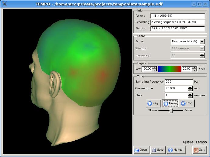 Tempo EEG Darstellung